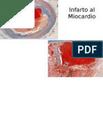 sindrome de dressler pdf