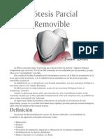 45174457 Protesis Parcial Removible