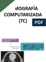 (TC) (1)