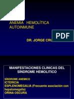 3. Anemia Hemolitica Autoinmune