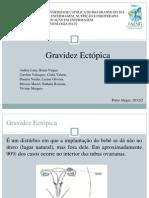 Gravidez Ectópica (1)