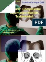 Fracturile zigomatico-maxilare
