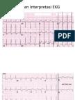 Latihan Interpretasi EKG_PPT