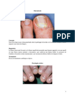Alteraciones de las uñas