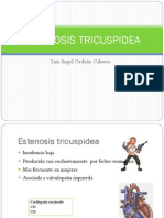 ESTENOSIS TRICUSPIDEA