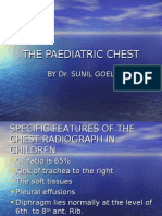 Paediatric Chest radiology