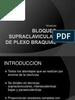 Bloqueo Supraclavicular de Plexo Braquial