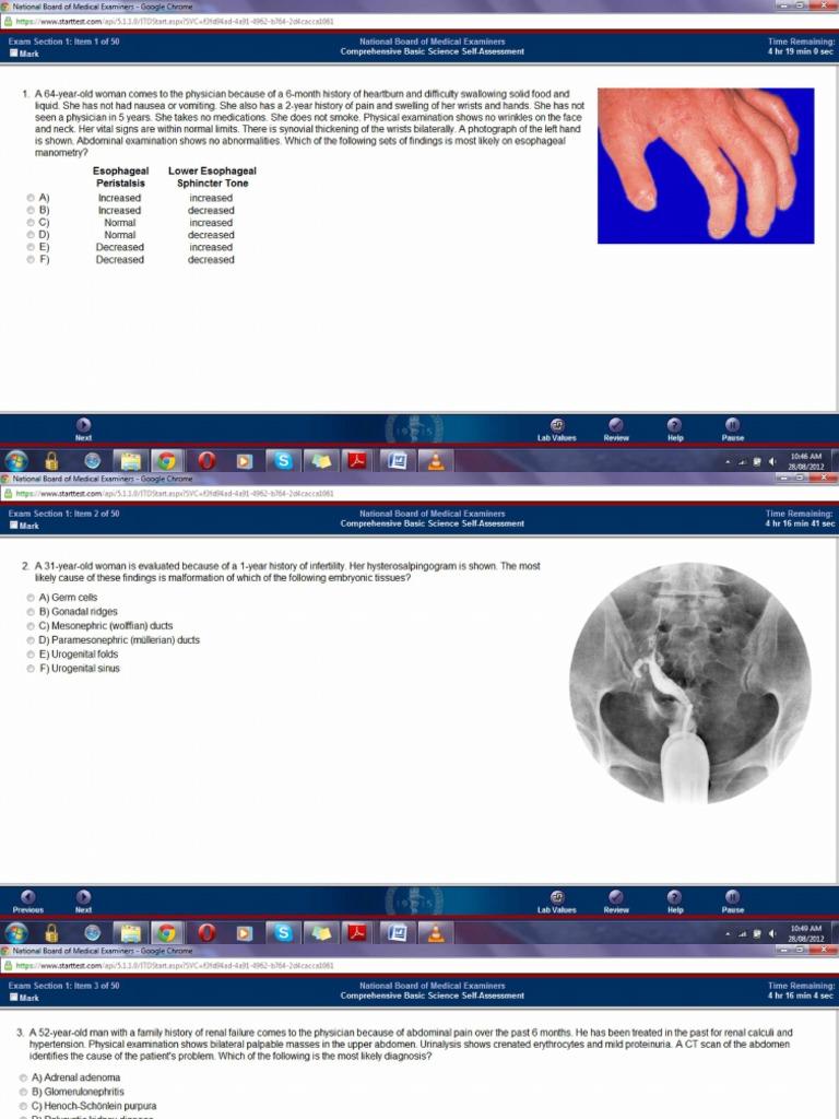 NBME-13 pdf   Herpes Simplex   Kidney