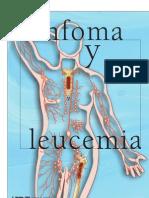 Linfoma y leucemia.pdf