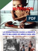 Desnutricion Charla