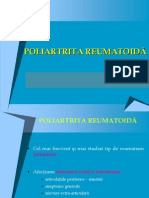 Poliartrita reumatoida[1]