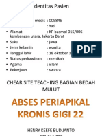 abses periapikal kronis