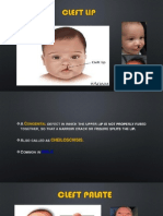 Cleft Lip - Cleft Palate