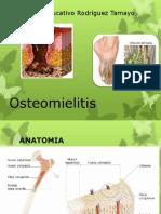 Osteomielitis.pptx