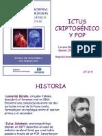 FOP e Ictus Criptogénico