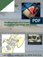 Osteotomía