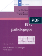 ECG Pathologique