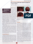 LaserCap Use During Chemotherapy to Prevent Hair Loss - September/October 2010 - TK Shiao