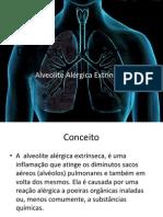 Doenças Pulmonares Alveolite