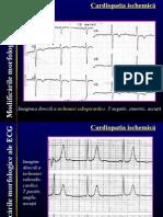 25537784-Cardiopatia-ischemica
