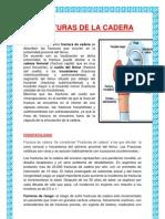 FRACTURAS DE LA CADERA (1).docx