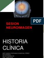 Caso Neuro Fosa Posterior Adultos
