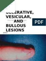 Ulcerative Vesicular