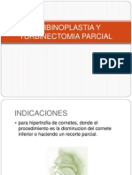 Turbinoplastia y Turbinectomia Parcial