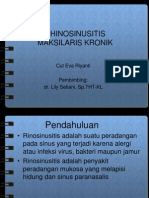 Rhinosinusitis maksilaris.ppt