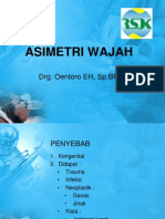 Asimetri Wajah