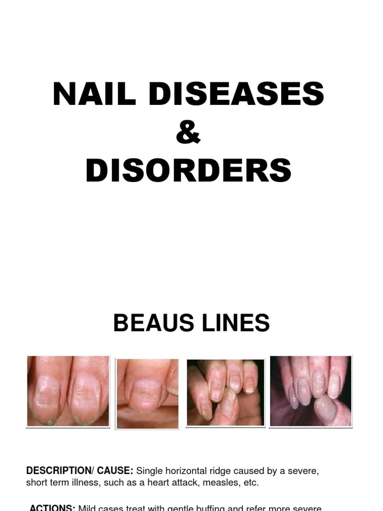 NAIL DISEASES DISORDERS POWERPOINT PRESENTATION 2010 1ppt