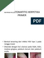 Gingivostomatitis Herpetika Primer
