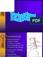 Tracheostomy2.ppt