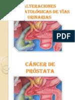 Cancer de Prostata.docx en Porwer Si