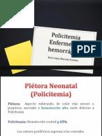 19. Policitemia