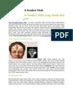 Apa Yang Menyebabkan Kanker Otak 2