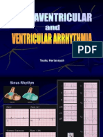Arrythmia (Rev)