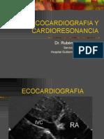 ECOCARDIOGRAFIA Y CARDIORESONANCIA