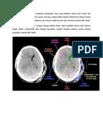 CT Scan Subdural Hematom