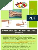 Tratamiento Sindrome Del Tunel Carpiano