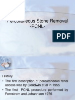 Percutaneous Stone Removal