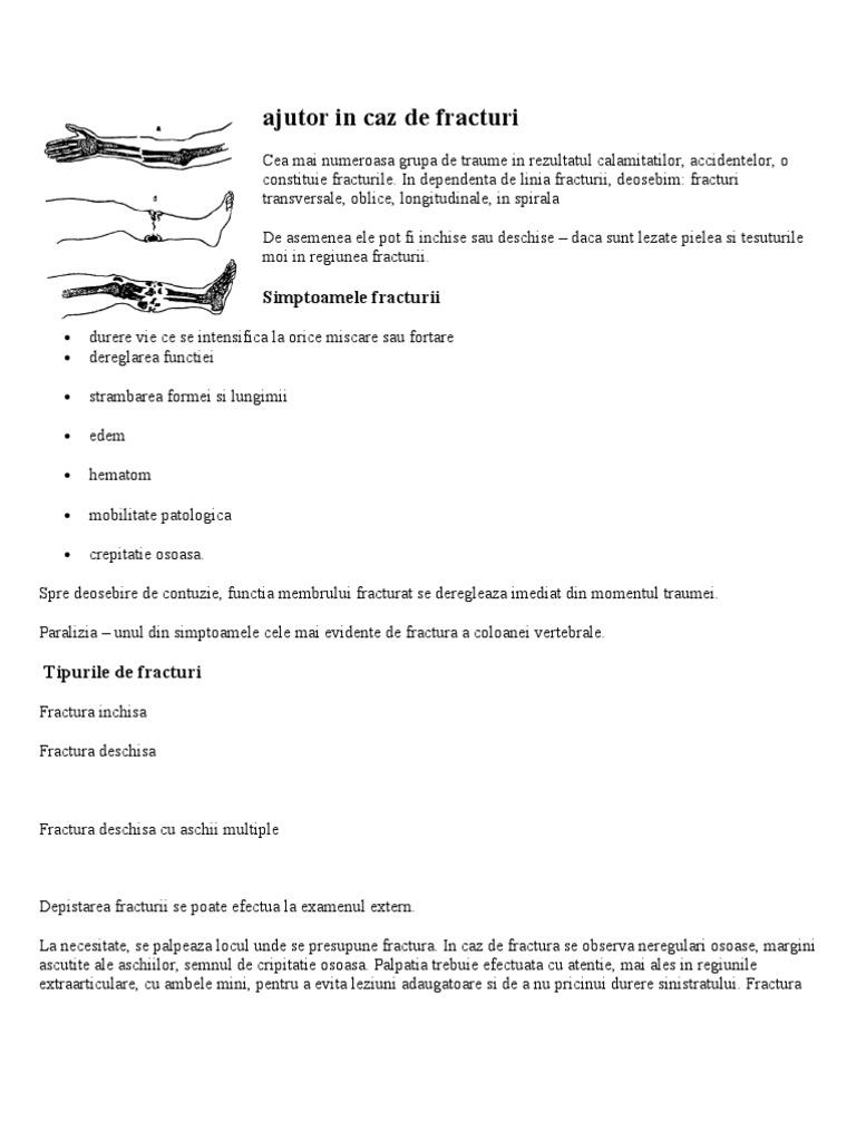 articulațiile mâinilor doare cum să amelioreze durerea