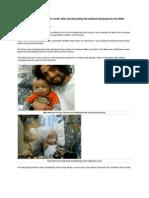 Boy Cancer Cured by Medical Marijuana