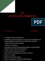 La Dysplasie Fibreuse
