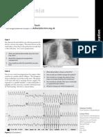 062_Cerebral-challenge_5_Update_2011.pdf