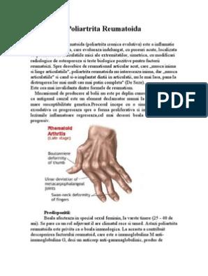 examen comun pentru artrita reumatoidă tratament articular dinamic