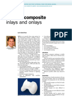 Indirect Composite Inlays and Onlays