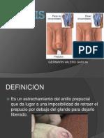 fimosis-120924213322-phpapp01