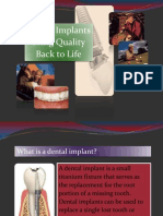 implant introduction.pptx