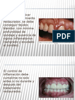 relacion perio-protesica